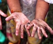 Gemeinsam gegen die Ausbeutung von Kinderarbeit.